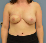 Delayed Free Flap Reconstruction