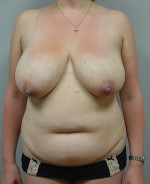 Abdominoplasty & Panniculectomy