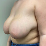 Breast Lift - Reduction